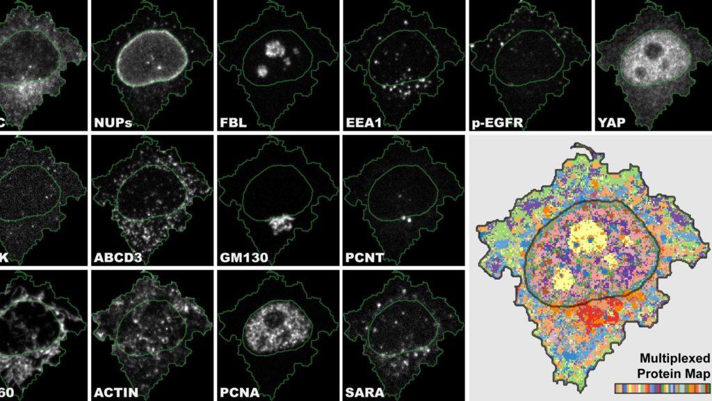 4i ist das erste bildgebende Verfahren, das eine enorm vielschichtige Ansicht einer Probe ermöglicht und mit multiplexierten Informationen auf der Gewebe-, Zell- und Organell-Ebene verbindet. © UZH